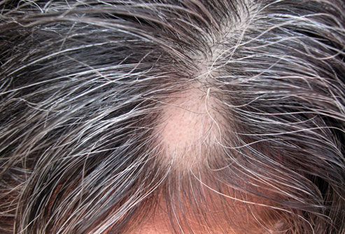 طاسی منطقه ای Alopecia Areata