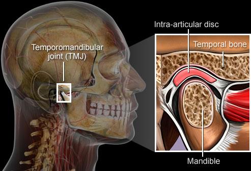 اختلال مفصل فکي-گيجگاهي