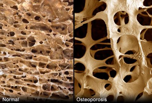 پوکی استخوان   Osteoporosis