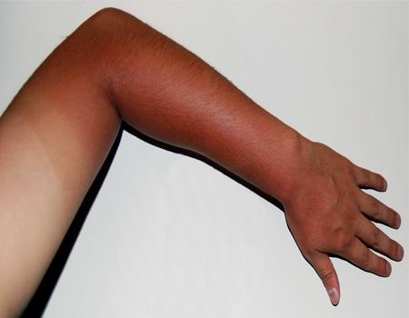 اقدمات احتیاطی آفتاب سوختگی