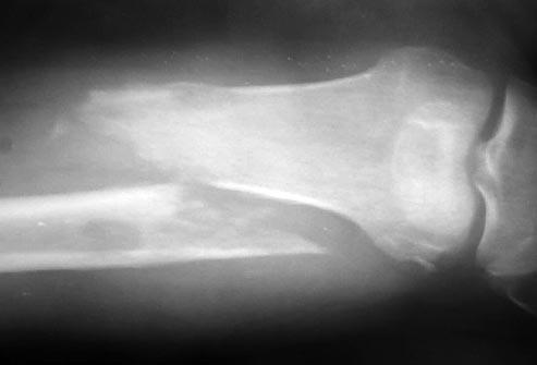 تاثیر متاستاز بر استخوانها